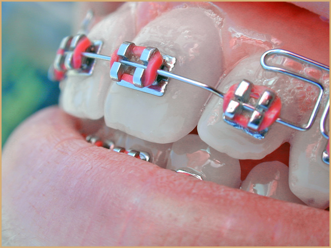 Orthodontist Liverpool