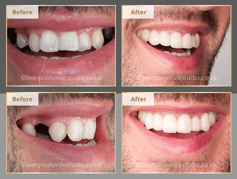 dental crowded teeth liverpool liverpool smile studio
