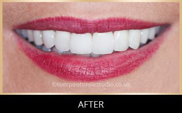 Gum Shaping Liverpool - Liverpool Smile Studio