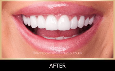 Veneers in Liverpool